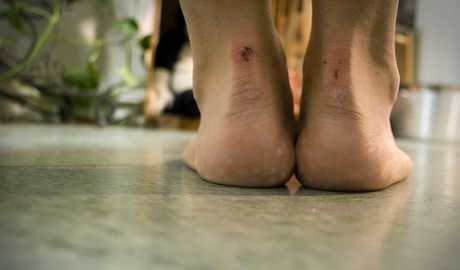 Kronična bol u petama